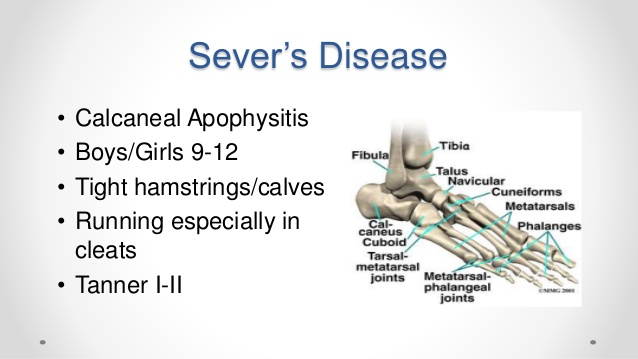 Youth Sports | Managing Sever's Disease